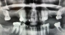 Summers' Sinus Lift Using Augma Bond Apatite A Case Report
